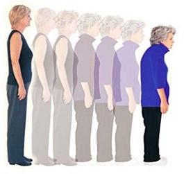 Dicas para prevenir a osteoporose